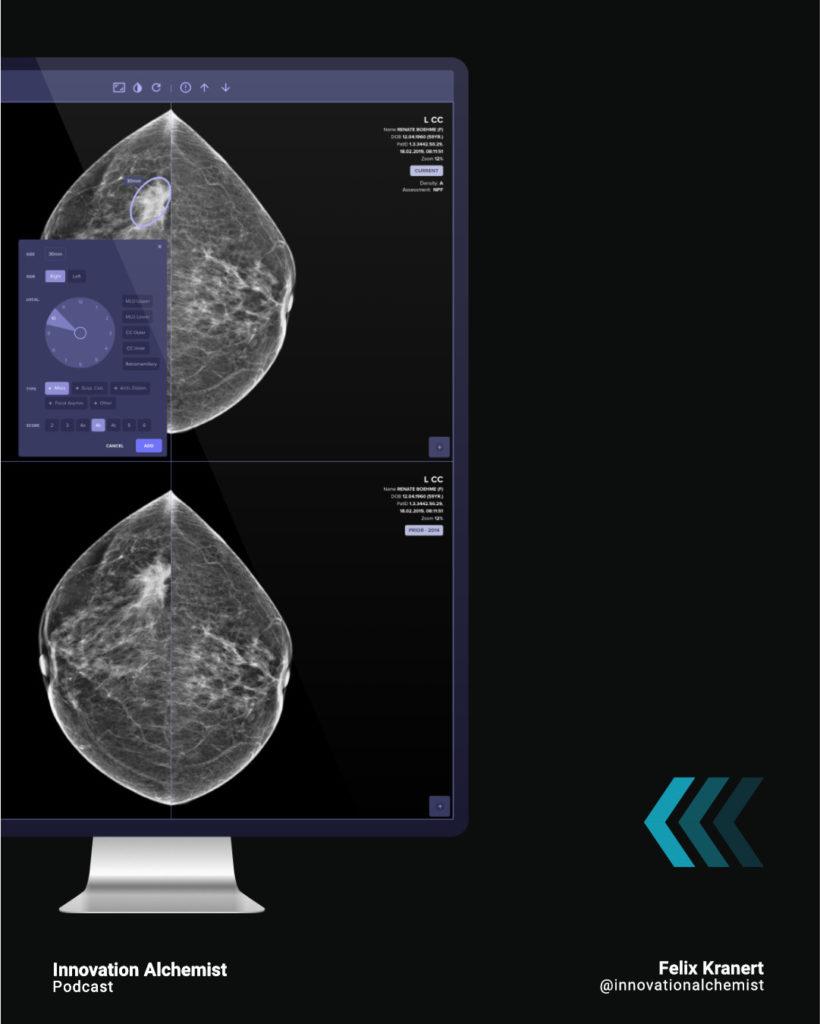 Künstliche Intelligenz hilft bei der Diagnose von Brustkrebs