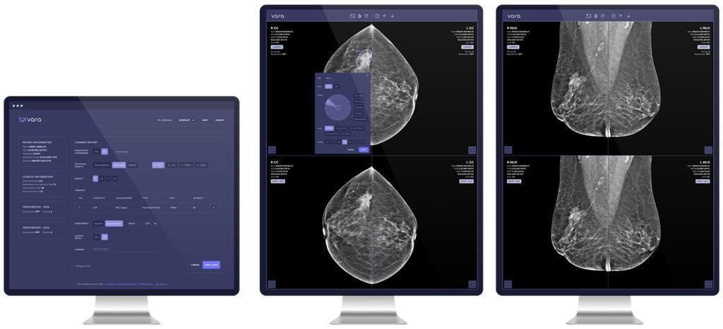 Krebs erkennen mit künstlicher Intelligenz
